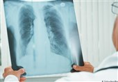 آمبولی ریوی چیست و چه علائمی دارد؟