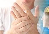 """راهکارهای کمکی طب سنتی برای درمان """"ام اس"""""""