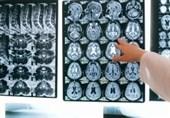 """""""اختلالات عصبی و روانی""""، شایعترین عوارض یک سوم بهبودیافتگان بیماری کرونا"""