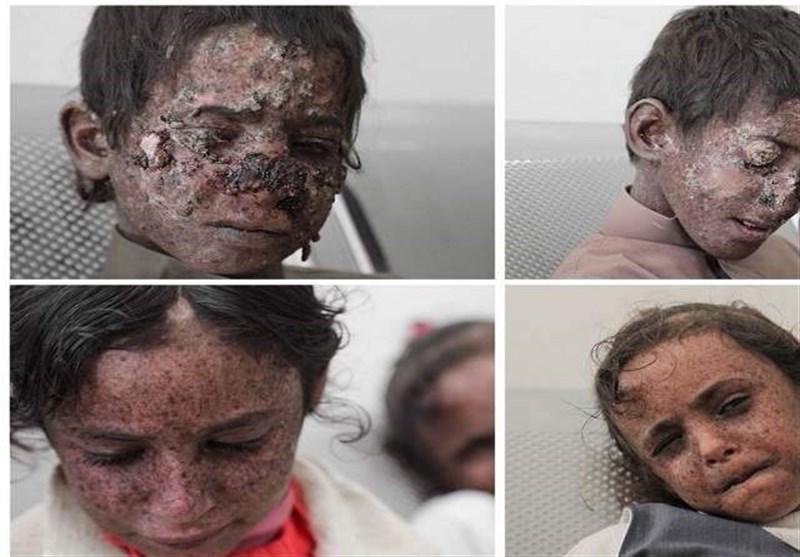 آمار تکاندهنده از بیماران سرطانی یمن در پی جنایتهای عربستان