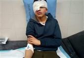 کودک فلسطینی به ضرب گلوله نظامیان صهیونیست نابینا شد