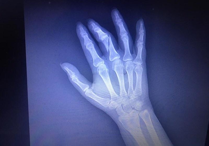 ضرب و شتم یک خبرنگار توسط حراست دانشگاه علوم پزشکی شهید بهشتی + تصاویر و اسناد