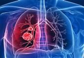 6 نشانه که ریههایتان نیازمند پاکسازی است