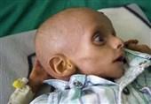 اشک تمساح سازمان ملل برای کودکان گرسنه یمن